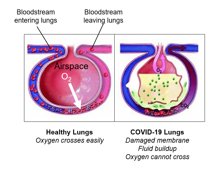 Lung condition in COVID-19